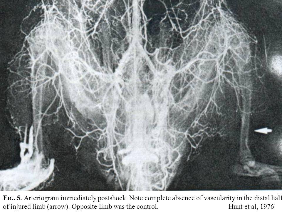 F IG.5. Arteriogram immediately postshock.