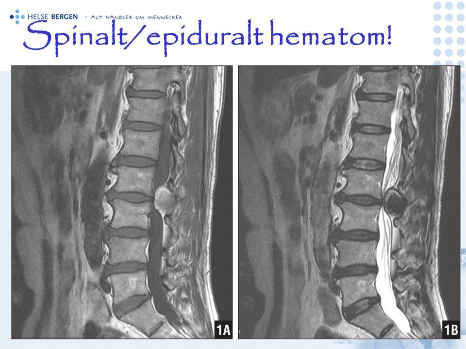 Spinalt/epiduralt hematom!