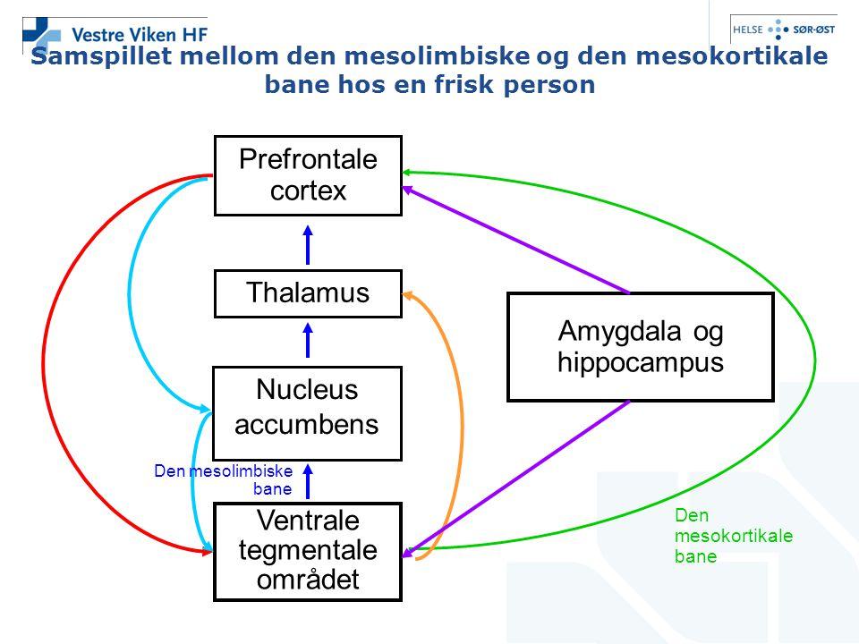 Samspillet mellom den mesolimbiske og den mesokortikale bane hos en frisk person Prefrontale cortex Thalamus Nucleus accumbens Ventrale tegmentale omr