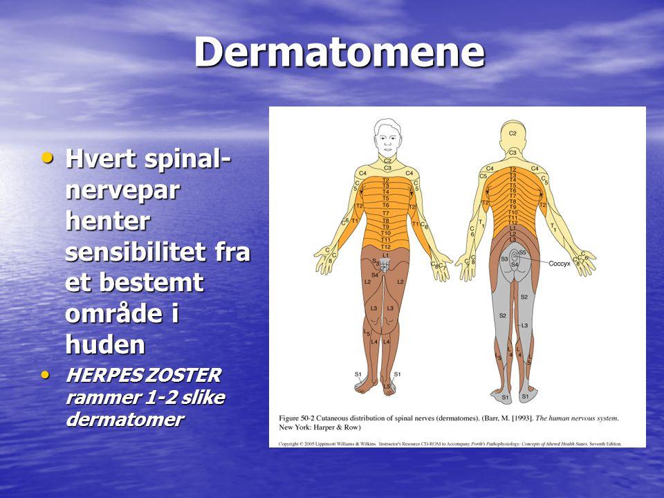 Dermatomene Dermatomene • Hvert spinal- nervepar henter sensibilitet fra et bestemt område i huden • HERPES ZOSTER rammer 1-2 slike dermatomer