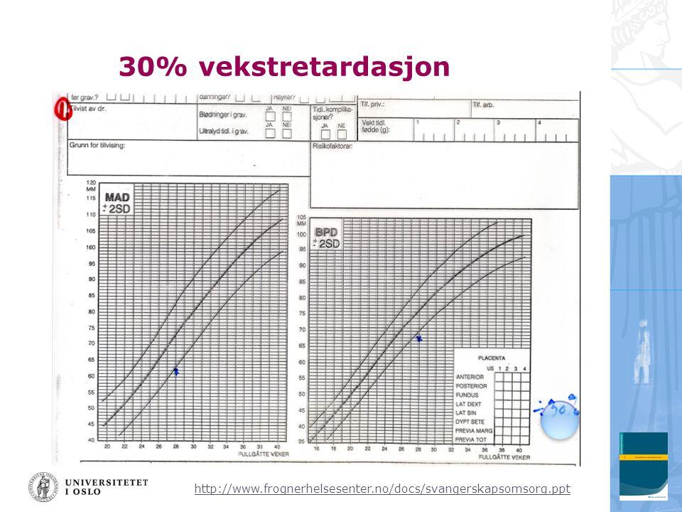 http://www.frognerhelsesenter.no/docs/svangerskapsomsorg.ppt 30% vekstretardasjon