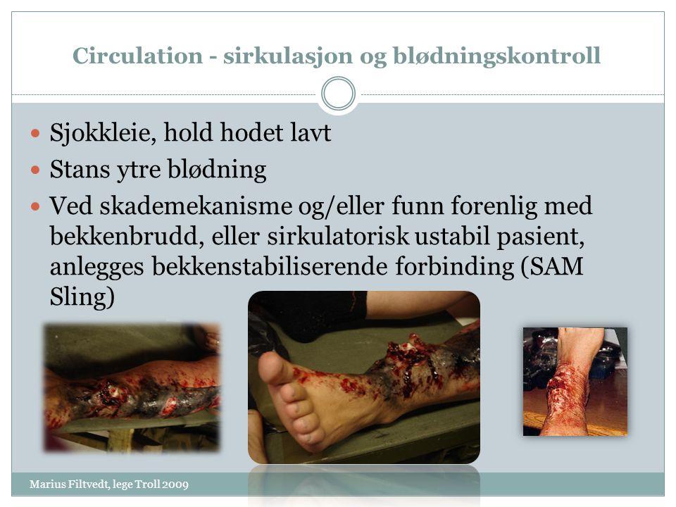 Circulation - sirkulasjon og blødningskontroll Marius Filtvedt, lege Troll 2009  Sjokkleie, hold hodet lavt  Stans ytre blødning  Ved skademekanism