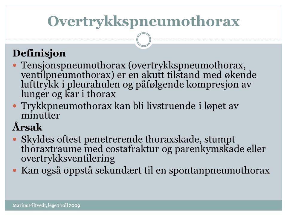 Overtrykkspneumothorax Marius Filtvedt, lege Troll 2009 Definisjon  Tensjonspneumothorax (overtrykkspneumothorax, ventilpneumothorax) er en akutt til