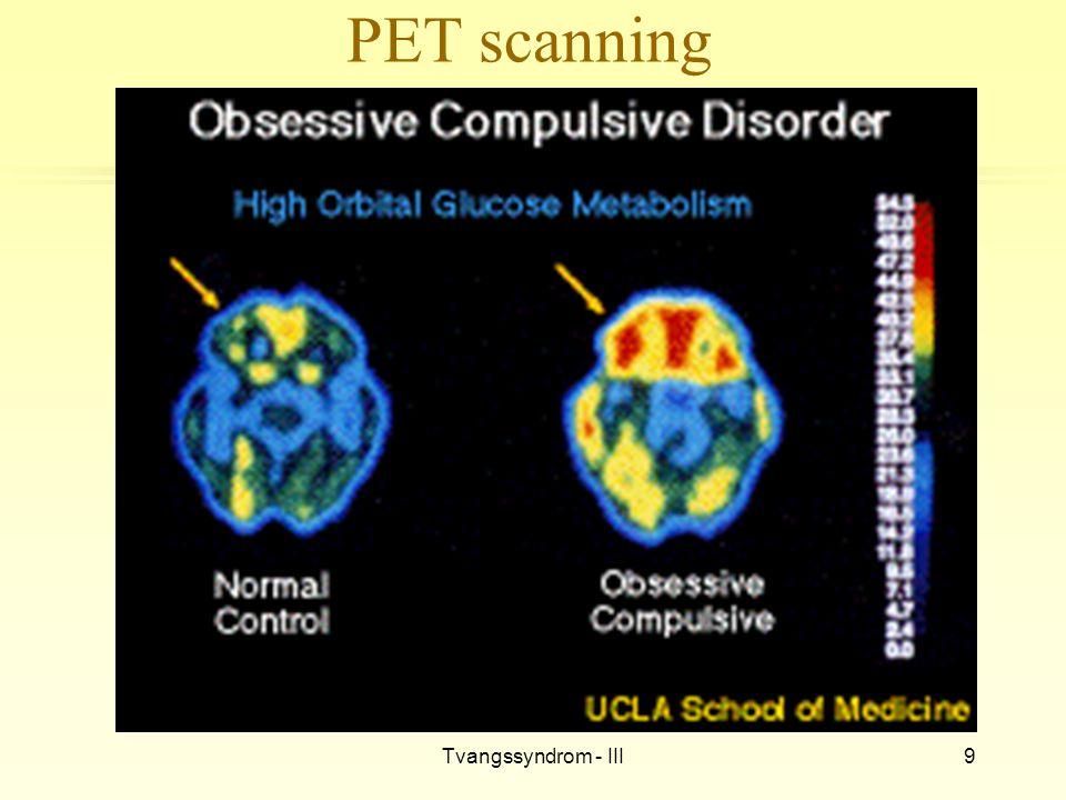 Tvangssyndrom - III9 PET scanning
