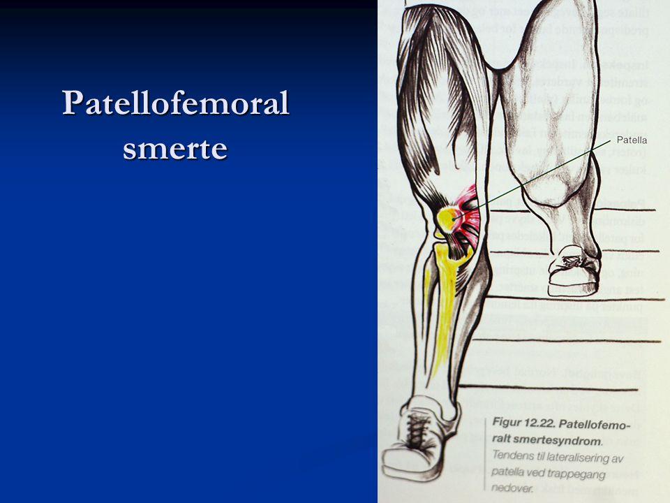 Patellofemoral smerte