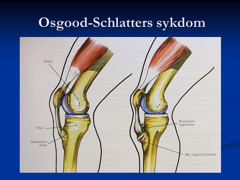 Osgood-Schlatters sykdom Osgood-Schlatters sykdom