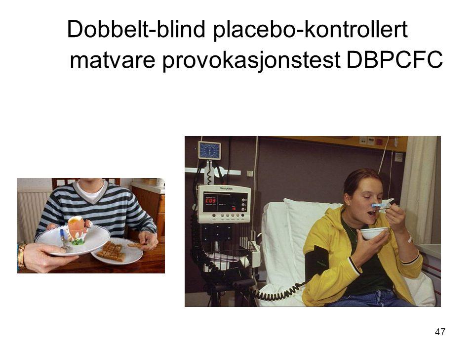 47 Dobbelt-blind placebo-kontrollert matvare provokasjonstest DBPCFC