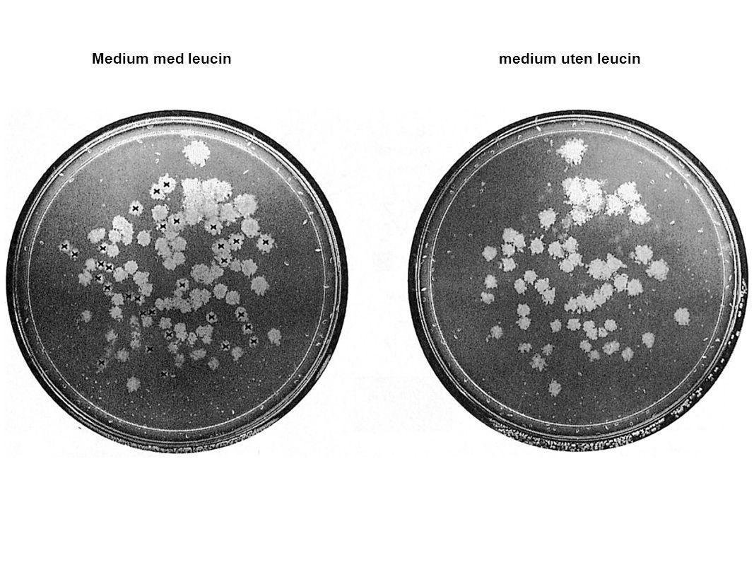 Medium med leucinmedium uten leucin