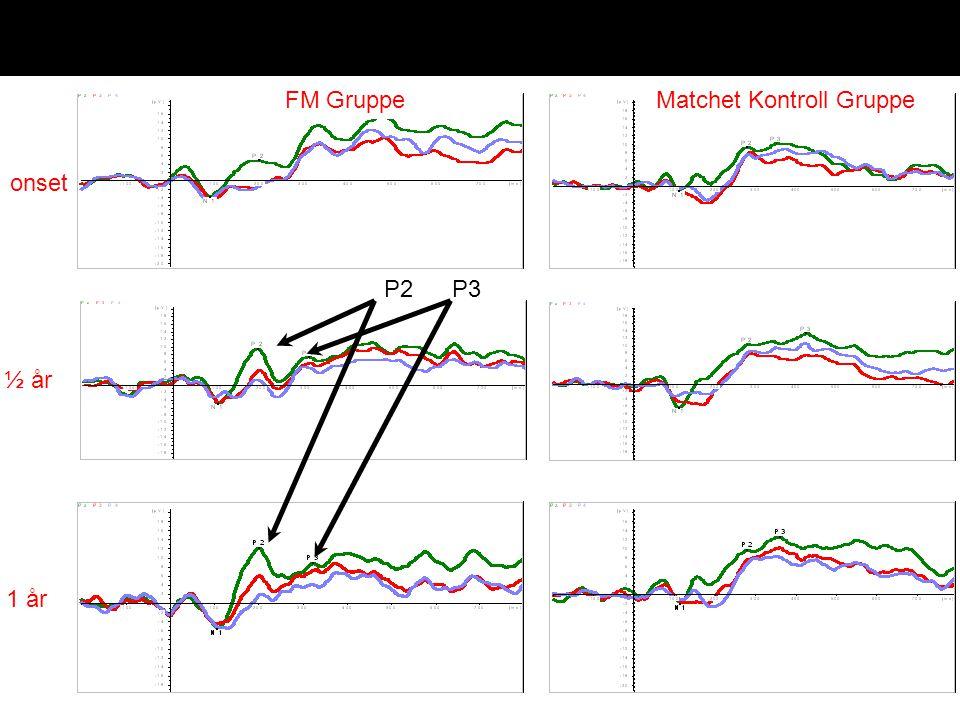 Late event related potentials onset ½ år 1 år FM GruppeMatchet Kontroll Gruppe P3P2