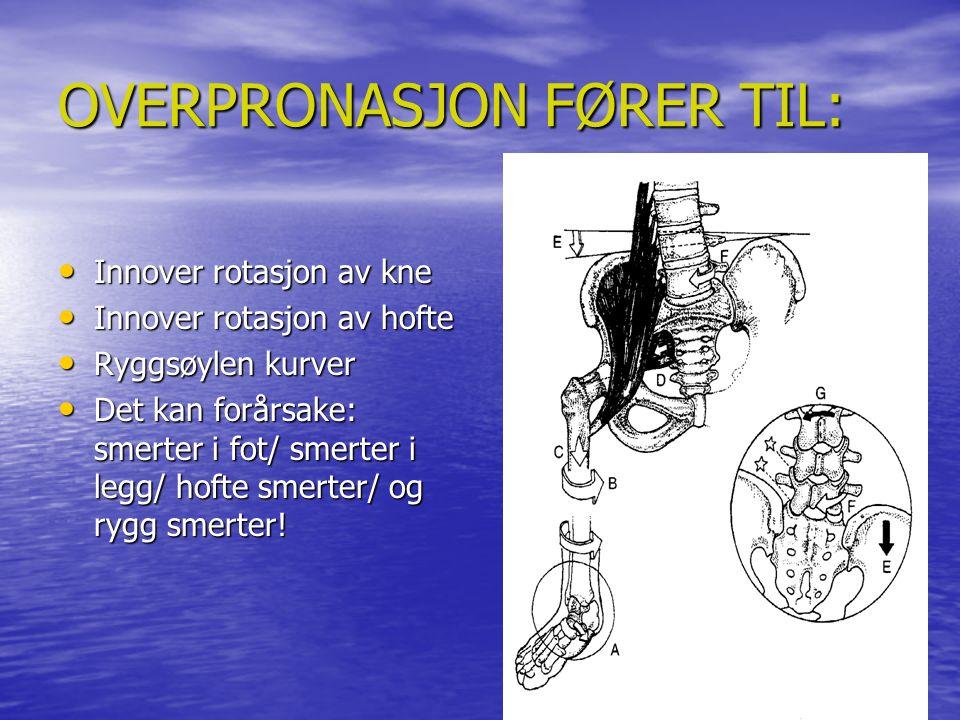 Kinetic Chain Effects Normal vs Overpronasjon N ormal Over Pronasjon OverSupinasjon N ormal Over Pronasjon OverSupinasjon WEIGHT BEARING ASSESSMENT OF REARFOOT AND FOREFOOT