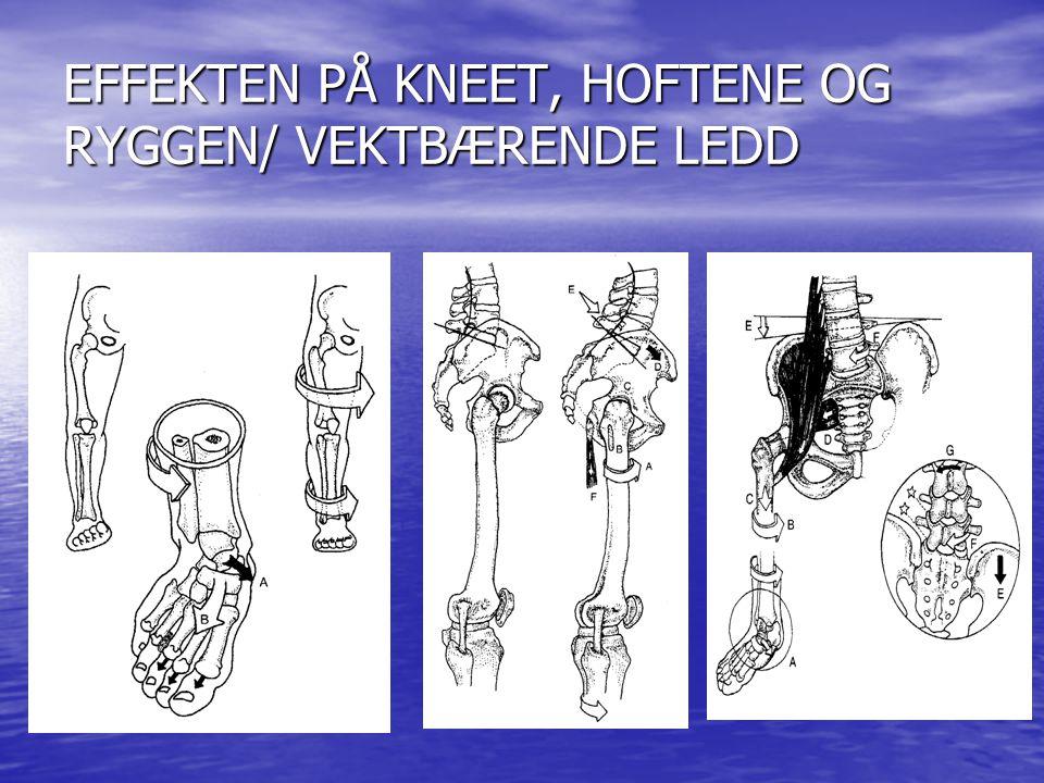 Dr. Kim Ross EFFEKTEN AV OVER-PRONASJON PÅ DEN KINEMATISKE KJEDEN ØVELSE Reis dere opp og proner og supiner foten. Hva skjer med ankel, kne hofte?