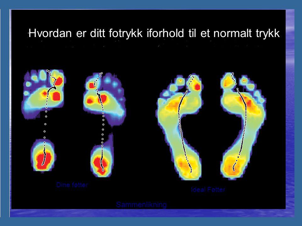 Identifiserer trykk punktene I fotsålen din.. Hva kan dette bety?