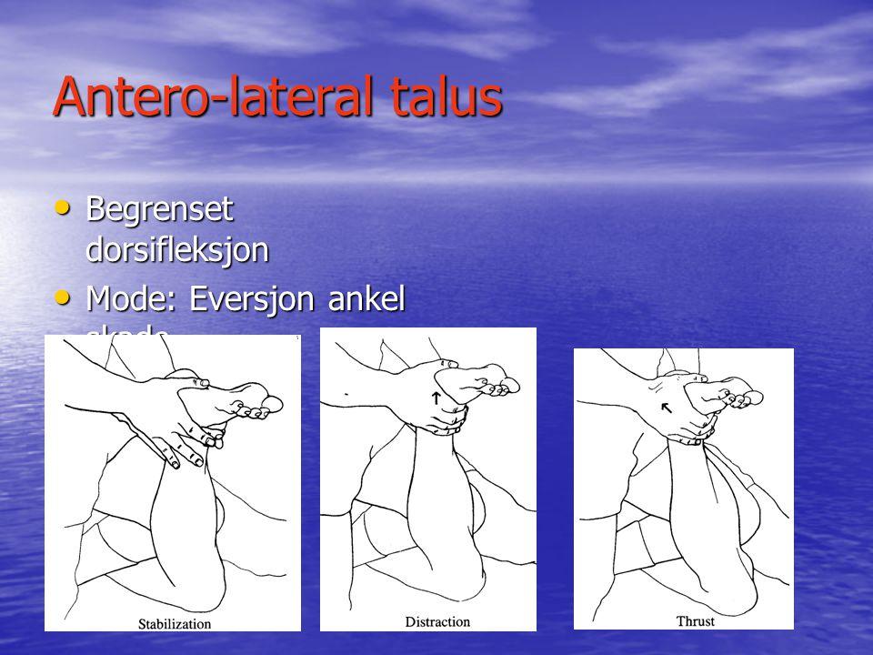 Vanlige fot låsninger Antero-medial talus • Redusert dorsifleksjon av foten (equinus) • Mode; Inversjon ankelskade.