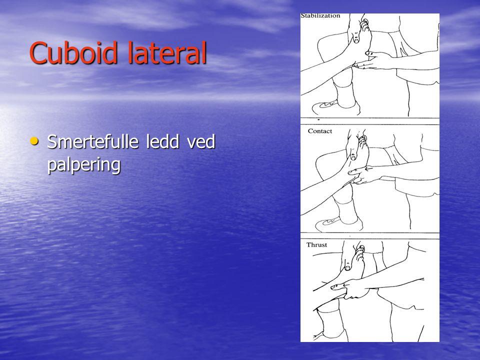 Cuboid anterior • Fiksert cuboid • Mode: Tråkket på kvasse gjenstander