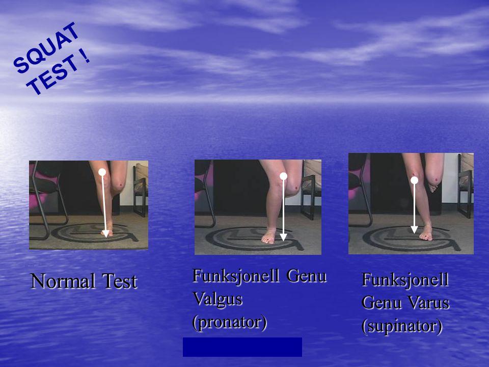 Dr.Kim Ross One Leg Squat Test • Mulige Funn • 1.
