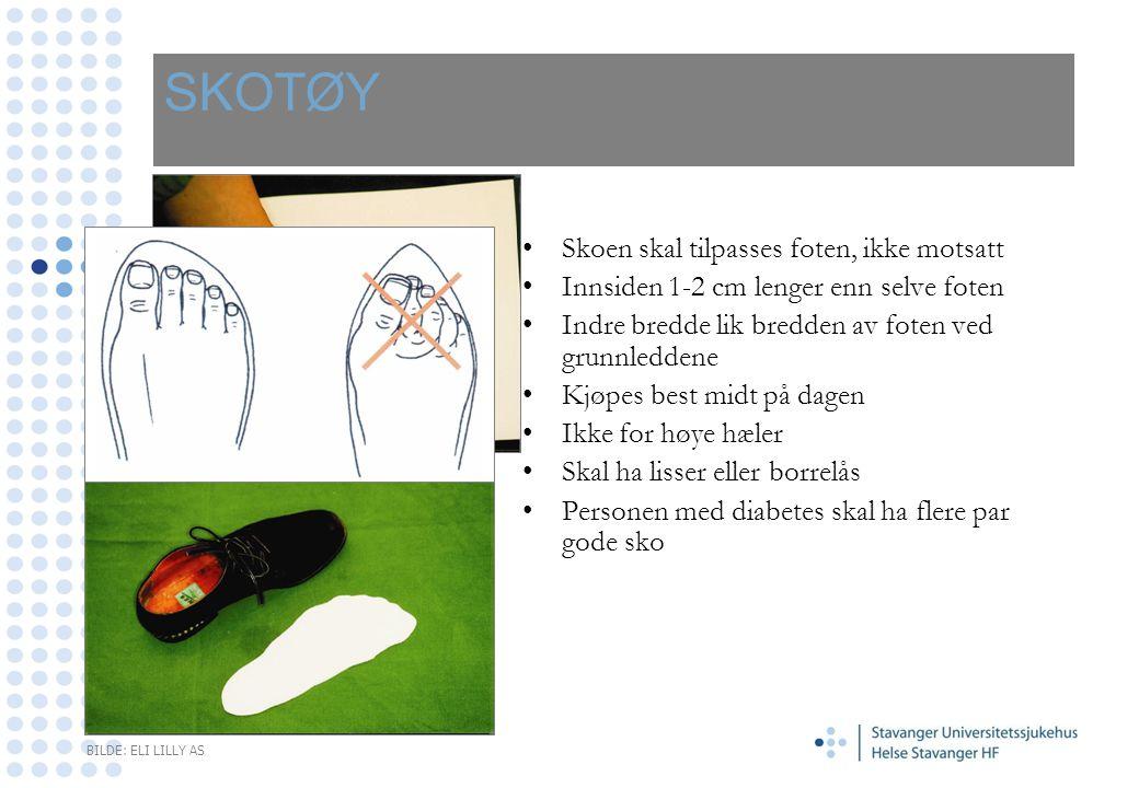 SKOTØY •Skoen skal tilpasses foten, ikke motsatt •Innsiden 1-2 cm lenger enn selve foten •Indre bredde lik bredden av foten ved grunnleddene •Kjøpes b