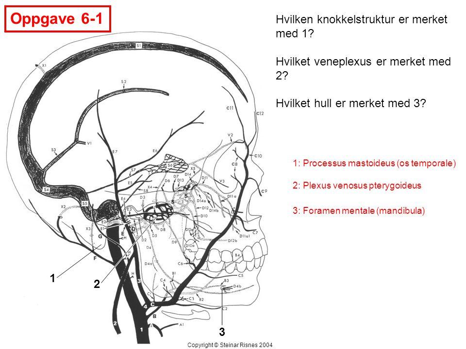 Oppgave 6-1 1 2 3 Hvilken knokkelstruktur er merket med 1? Hvilket veneplexus er merket med 2? Hvilket hull er merket med 3? Copyright © Steinar Risne