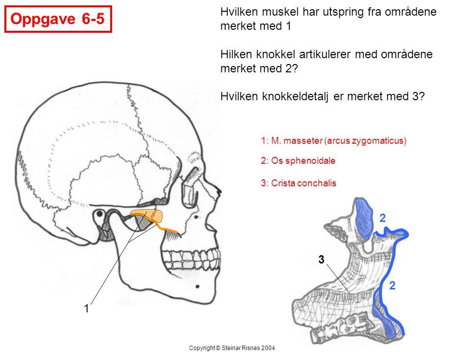 Oppgave 6-5 2 2 1 3 Hvilken muskel har utspring fra områdene merket med 1 Hilken knokkel artikulerer med områdene merket med 2? Hvilken knokkeldetalj