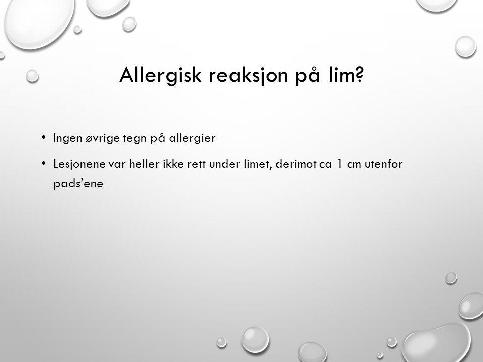 Allergisk reaksjon på lim? • Ingen øvrige tegn på allergier • Lesjonene var heller ikke rett under limet, derimot ca 1 cm utenfor pads'ene