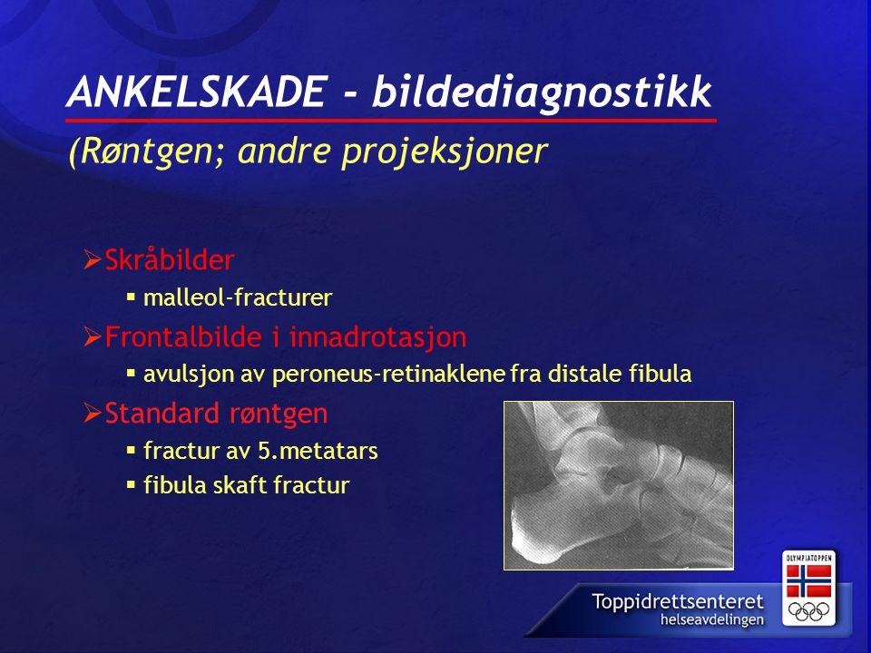  Skråbilder  malleol-fracturer  Frontalbilde i innadrotasjon  avulsjon av peroneus-retinaklene fra distale fibula  Standard røntgen  fractur av