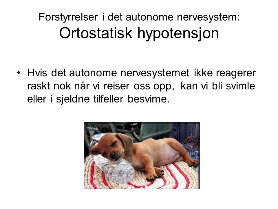 Forstyrrelser i det autonome nervesystem: Ortostatisk hypotensjon •Hvis det autonome nervesystemet ikke reagerer raskt nok når vi reiser oss opp, kan vi bli svimle eller i sjeldne tilfeller besvime.