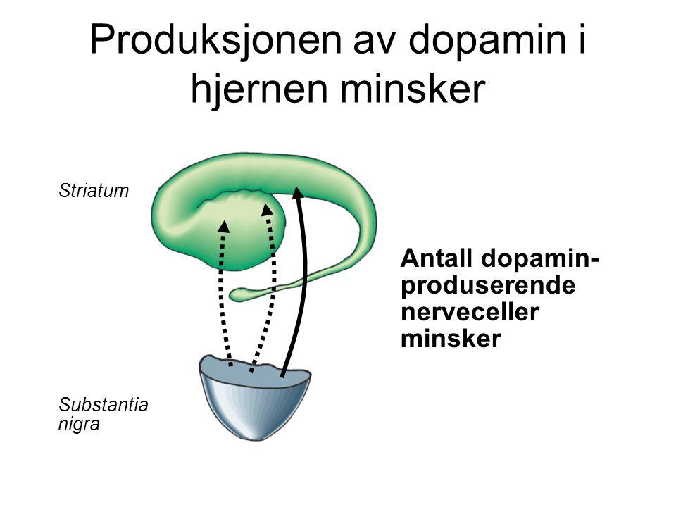 Antall dopamin- produserende nerveceller minsker Striatum Substantia nigra Produksjonen av dopamin i hjernen minsker