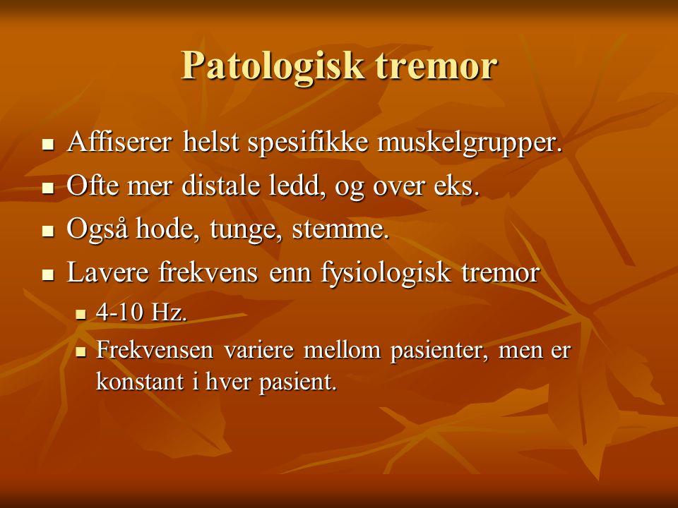 Mange typer og navn  Aksjon tremor  Cerebellar tremor  Medikament indusert tremor  Essensiel tremor  Forsterket fysiologisk tremor  Hode tremor  Kinetisk tremor  Hvile tremor  Parkinsonistisk tremor  Postural tremor  Re-emergent tremor  Orthostatisk tremor  Holm's tremor  Psykogen tremor  Intensjons tremor  Palatal tremor  Nevropatisk tremor