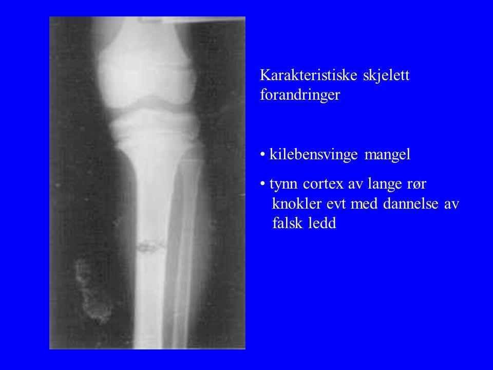 Karakteristiske skjelett forandringer • kilebensvinge mangel • tynn cortex av lange rør knokler evt med dannelse av falsk ledd