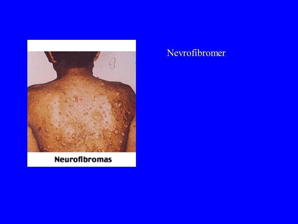 Nevrofibromer