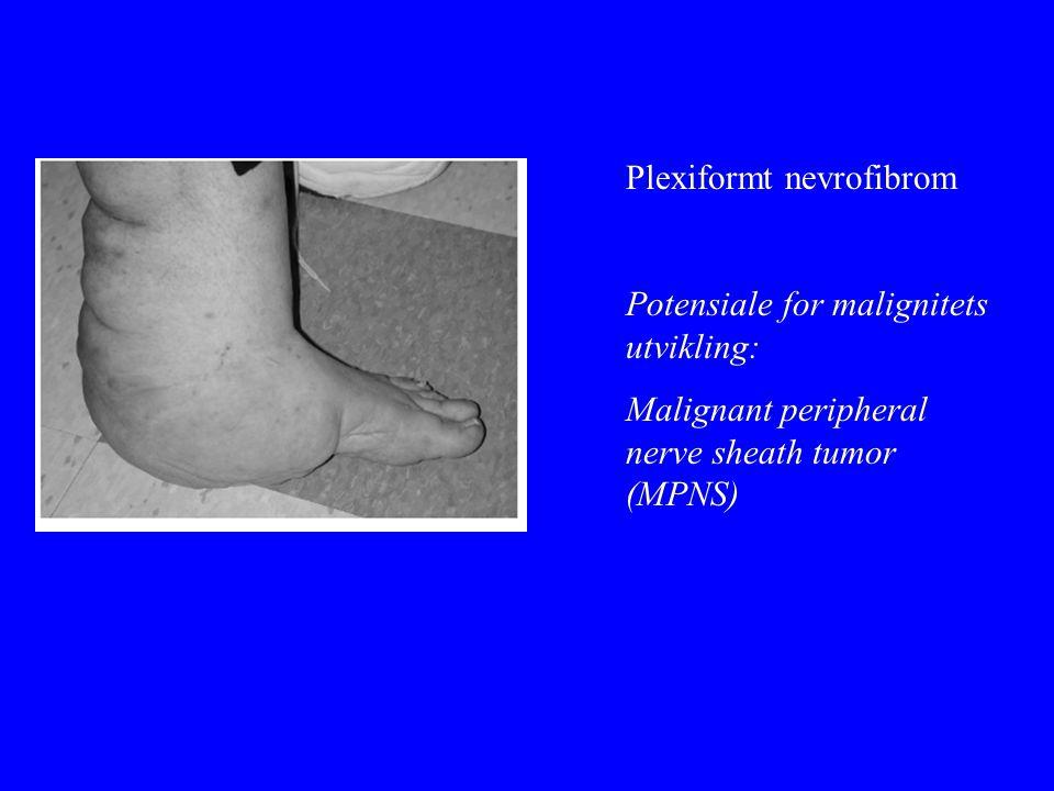 Plexiformt nevrofibrom Potensiale for malignitets utvikling: Malignant peripheral nerve sheath tumor (MPNS)