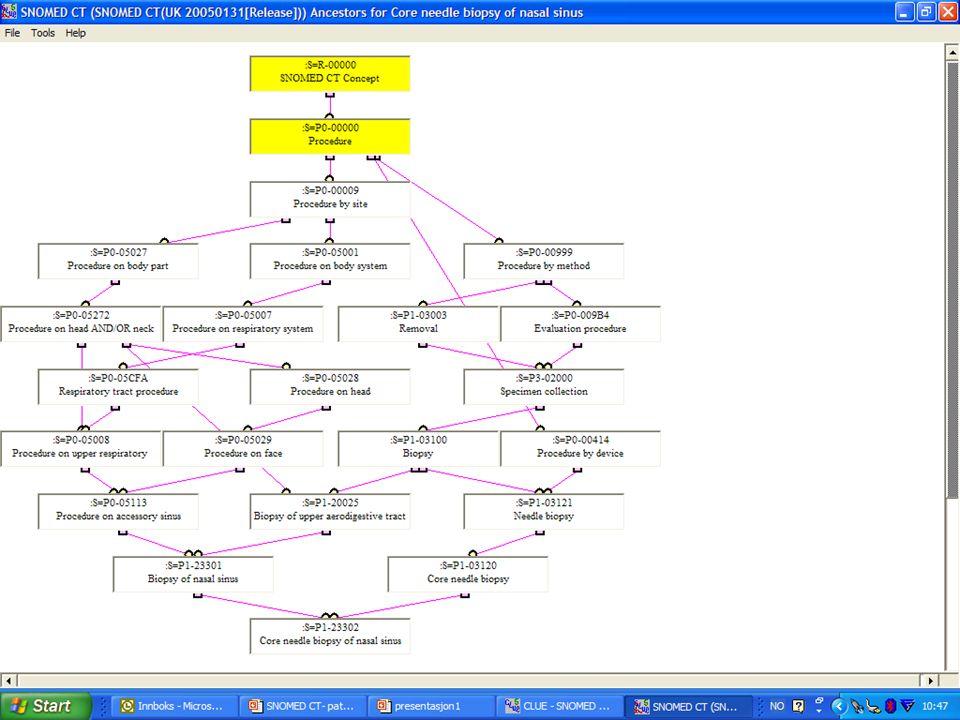 SNOMED CT-introduksjon • Jostein Ven, rådgiver, KITH, 03.11.05 Hierarkisk nettverk gjennom is-a- relasjonen
