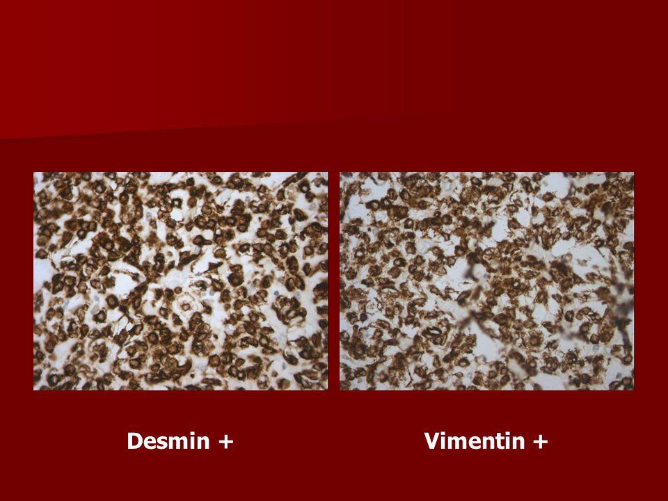 Desmin +Vimentin +