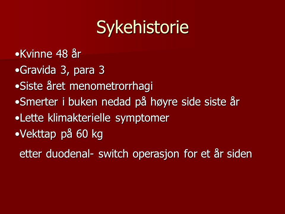 Sykehistorie •Kvinne 48 år •Gravida 3, para 3 •Siste året menometrorrhagi •Smerter i buken nedad på høyre side siste år •Lette klimakterielle symptome
