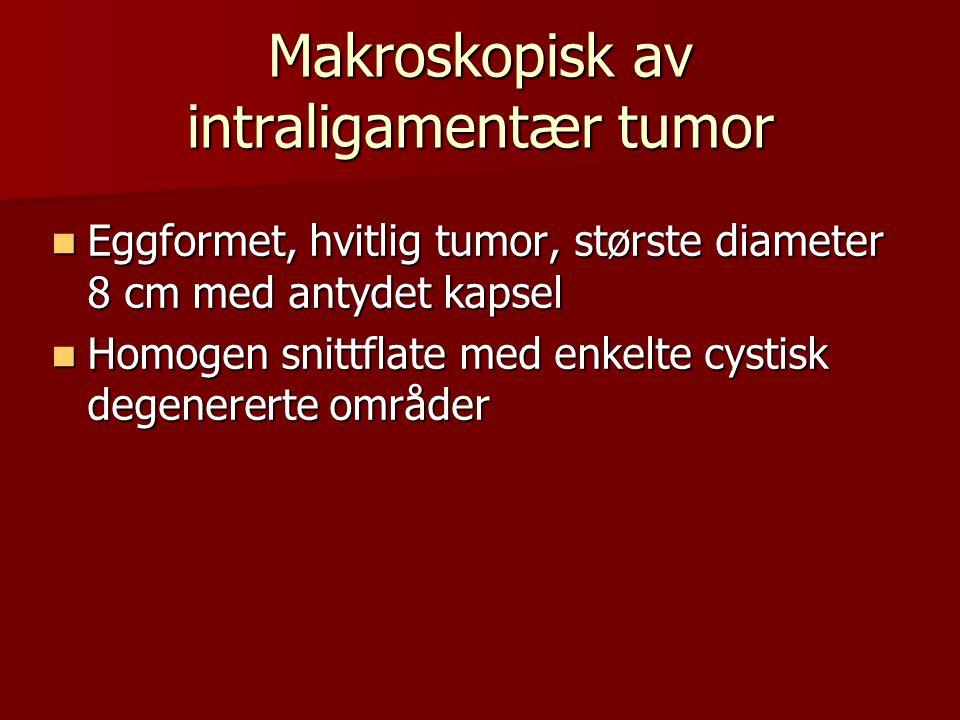 Makroskopisk av intraligamentær tumor  Eggformet, hvitlig tumor, største diameter 8 cm med antydet kapsel  Homogen snittflate med enkelte cystisk de