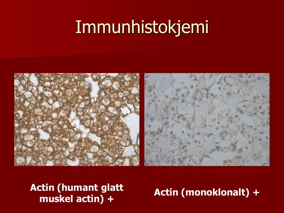 Immunhistokjemi Actin (humant glatt muskel actin) + Actin (monoklonalt) +