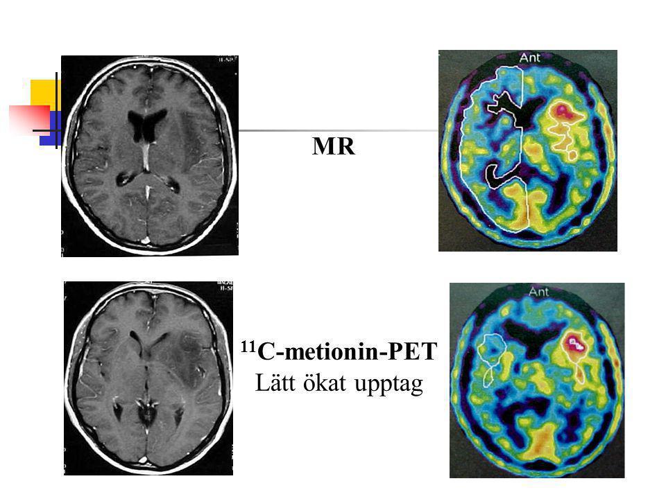11 C-metionin-PET Lätt ökat upptag MR