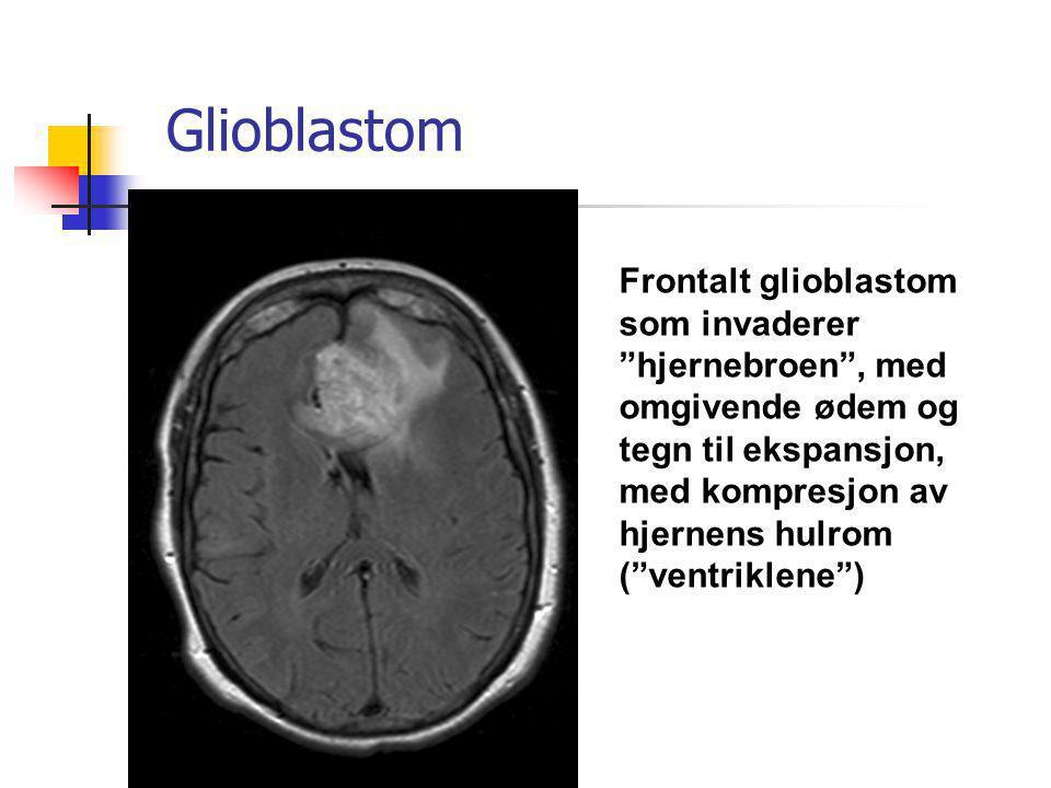 """Glioblastom Frontalt glioblastom som invaderer """"hjernebroen"""", med omgivende ødem og tegn til ekspansjon, med kompresjon av hjernens hulrom (""""ventrikle"""