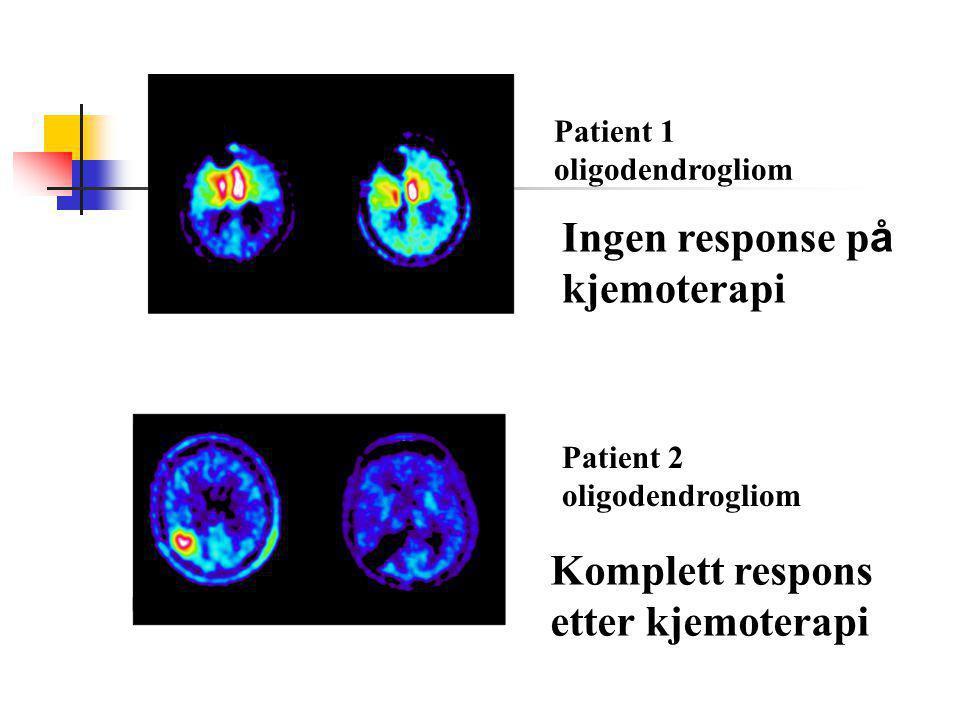 Patient 1 oligodendrogliom Patient 2 oligodendrogliom Ingen response p å kjemoterapi Komplett respons etter kjemoterapi