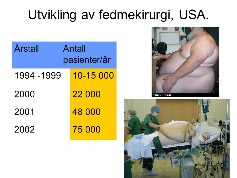 Utvikling av fedmekirurgi, USA. ÅrstallAntall pasienter/år 1994 -199910-15 000 200022 000 200148 000 200275 000