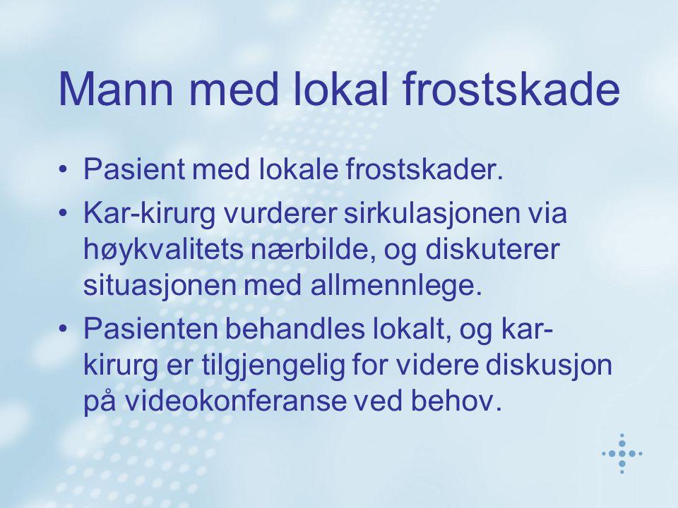 Mann med lokal frostskade •Pasient med lokale frostskader. •Kar-kirurg vurderer sirkulasjonen via høykvalitets nærbilde, og diskuterer situasjonen med