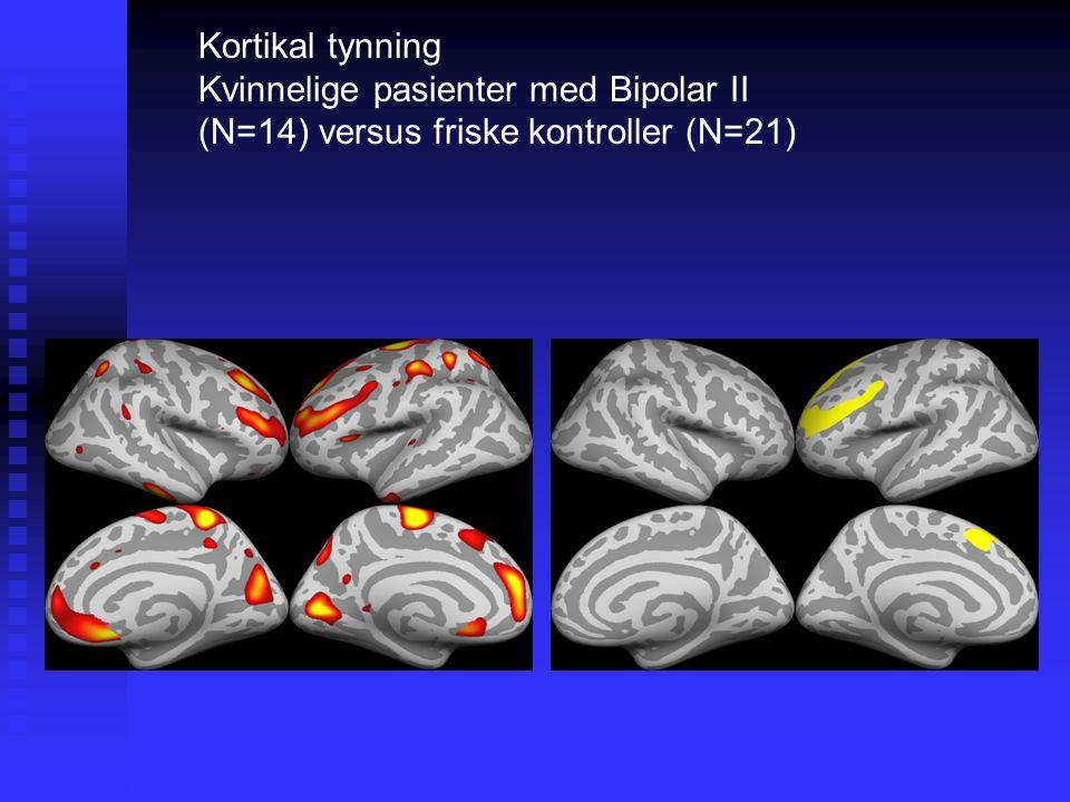Kortikal tynning Kvinnelige pasienter med Bipolar II (N=14) versus friske kontroller (N=21)