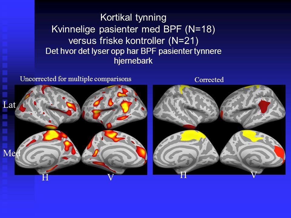 Kortikal tynning Kvinnelige pasienter med BPF (N=18) versus friske kontroller (N=21) Det hvor det lyser opp har BPF pasienter tynnere hjernebark Uncorrected for multiple comparisons Corrected HV HV Med Lat