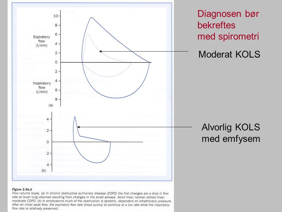 Diagnosen bør bekreftes med spirometri Moderat KOLS Alvorlig KOLS med emfysem