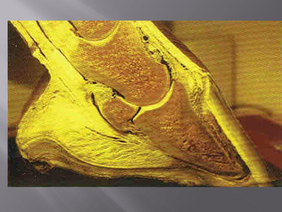  Unormal hornvekst i hornkapselen  Sålen er flat eller konveks  Lamellranden bredere enn normalt  Hovbeinsdreining kan sees på røntgen  Hesten går med dobbeltslag (setter drakten før tådelen i bakken)