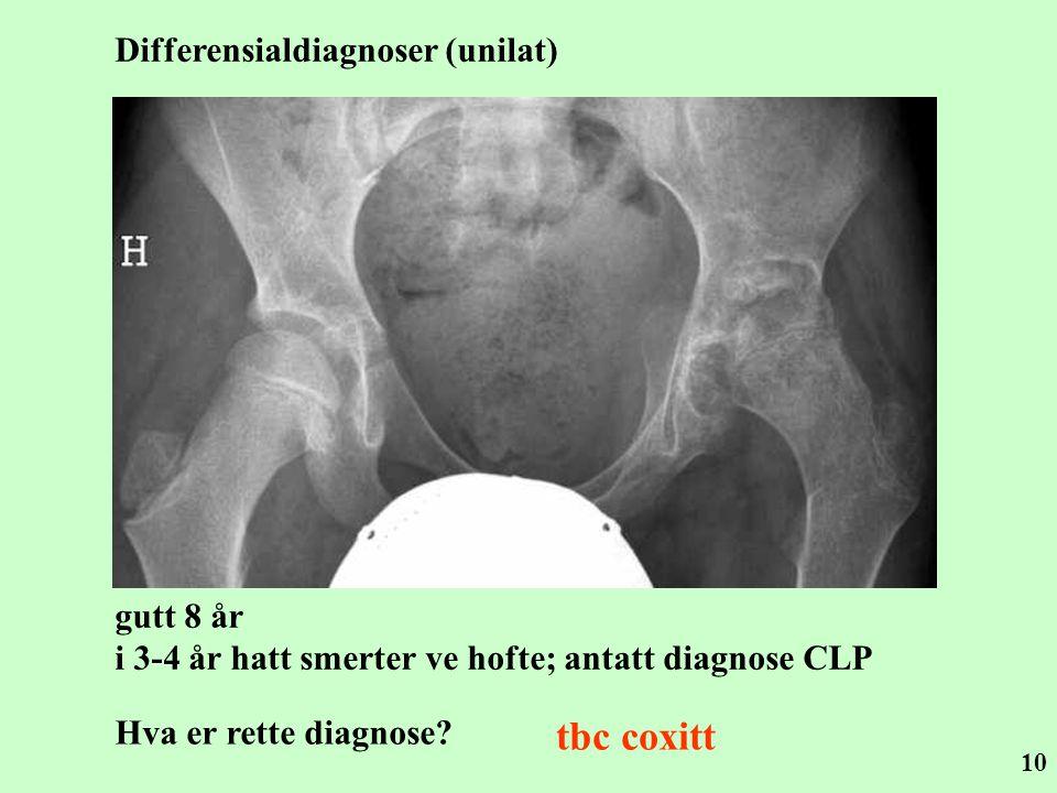 10 gutt 8 år i 3-4 år hatt smerter ve hofte; antatt diagnose CLP Hva er rette diagnose? tbc coxitt Differensialdiagnoser (unilat)