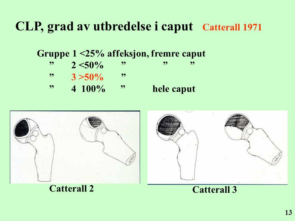 """13 CLP, grad av utbredelse i caput Catterall 1971 Gruppe 1 <25% affeksjon, fremre caput """" 2 <50% """" """" """" """" 3 >50% """" """" 4 100% """" hele caput Catterall 2 Ca"""