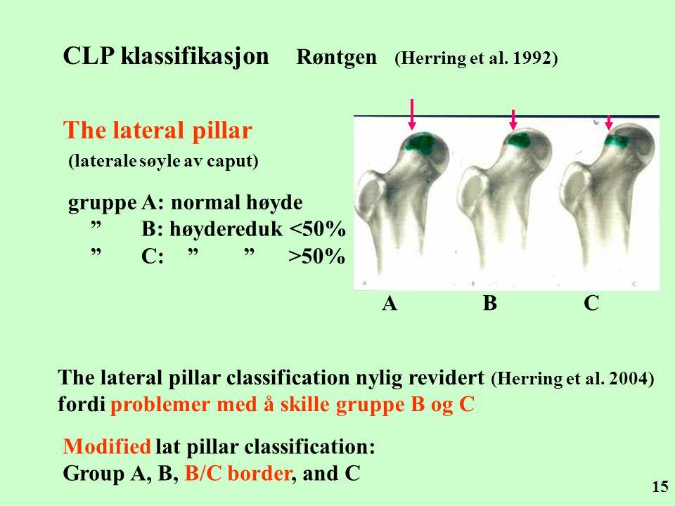"""15 CLP klassifikasjon Røntgen (Herring et al. 1992) The lateral pillar (laterale søyle av caput) gruppe A: normal høyde """" B: høydereduk <50% """" C: """" """""""