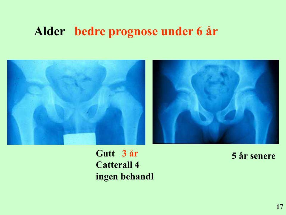 17 Alder bedre prognose under 6 år 5 år senere Gutt 3 år Catterall 4 ingen behandl
