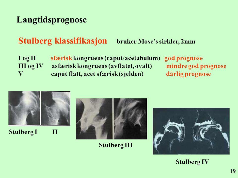 19 Stulberg klassifikasjon bruker Mose's sirkler, 2mm I og II sfærisk kongruens (caput/acetabulum) god prognose III og IV asfærisk kongruens (avflatet