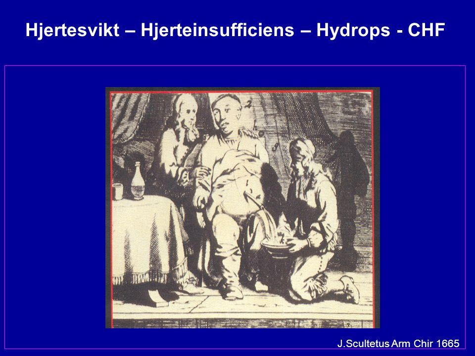 J.Scultetus Arm Chir 1665 Hjertesvikt – Hjerteinsufficiens – Hydrops - CHF